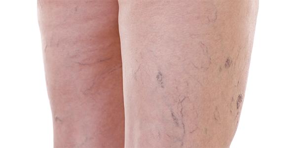 tratamiento varices laser neodimio