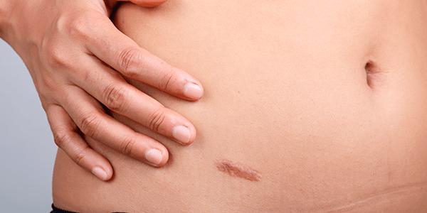 tratamiento de queloides y cicatrices hipertróficas